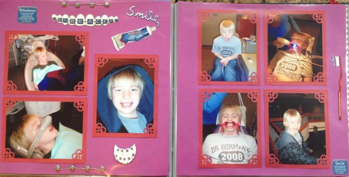 2008: Getting My Braces